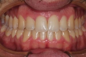 Dents perfectament alineades per Invisalign